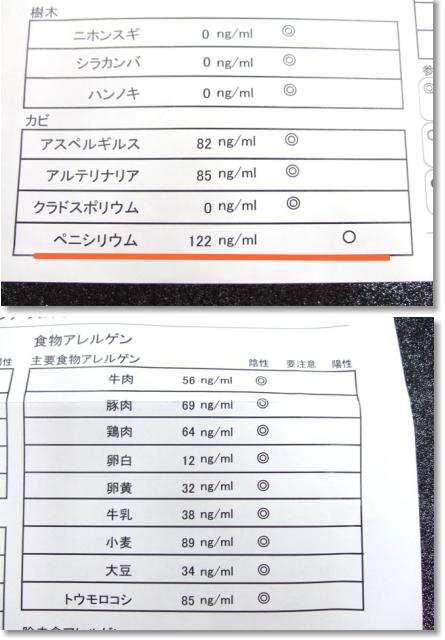 アレルギー検査結果 (3)
