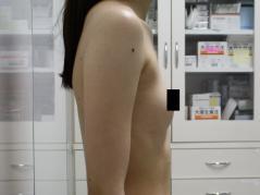 コンデンスリッチファット・CRF・ベイザー豊胸・脂肪注入