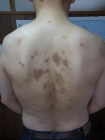 湿疹 かゆい 背中