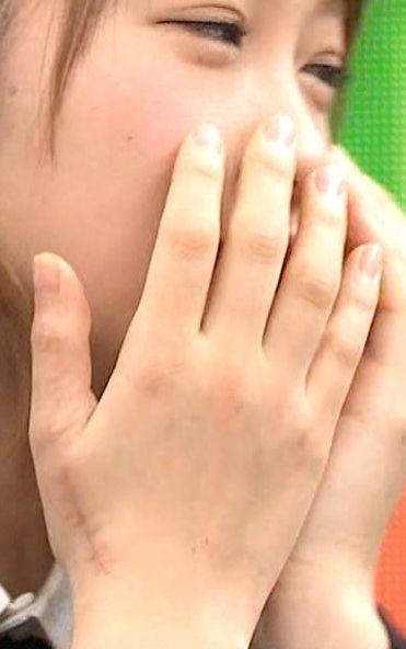 「バイキング」で映った川栄李奈の手の縫った痕