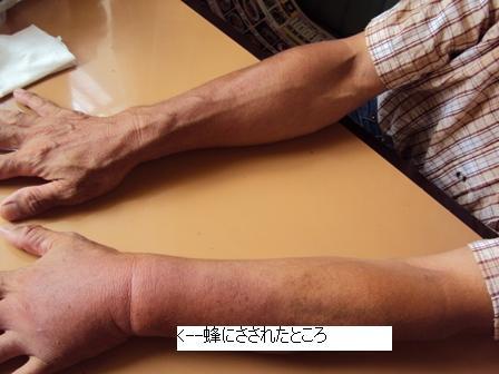 腫れあがった左手