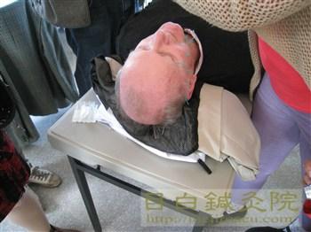 facial acupuncture 2