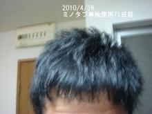 20代男、ミノタブ単独使用で薄毛・AGAを克服できるか!朝、夜5mg服用-71日目