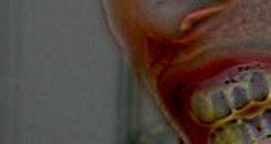 s02歯ぎしり01