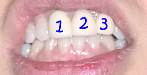 implant1205.jpg