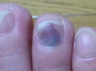 s右足中指の爪死亡