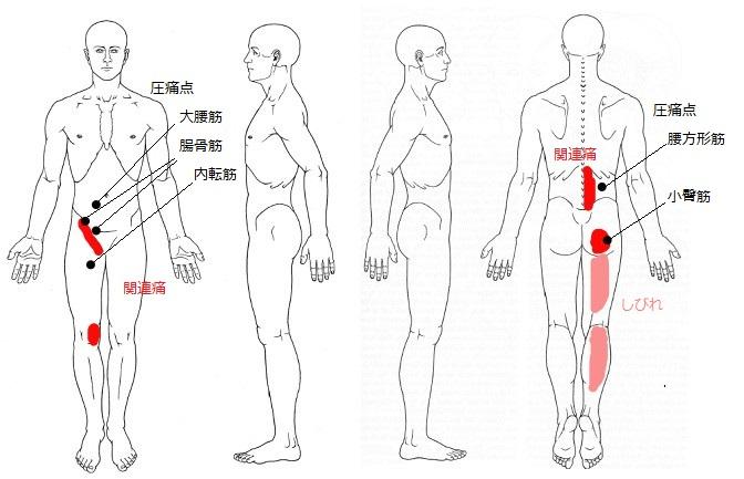 脊柱管狭窄症TP
