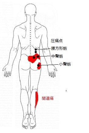 腰方形筋、中小臀筋TP