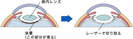 pic_postoperative02.jpg