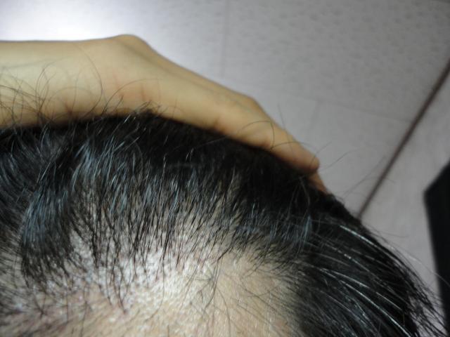 術後8か月左M字