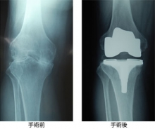 artificial-joint-img.jpg